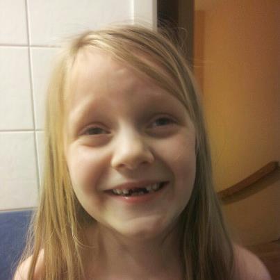 Ida har tappat tand nr 8
